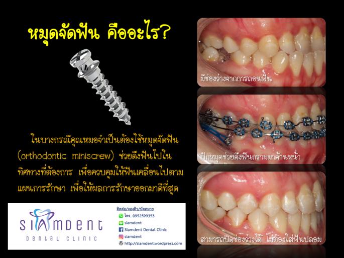 หมุดจัดฟันคืออะไร