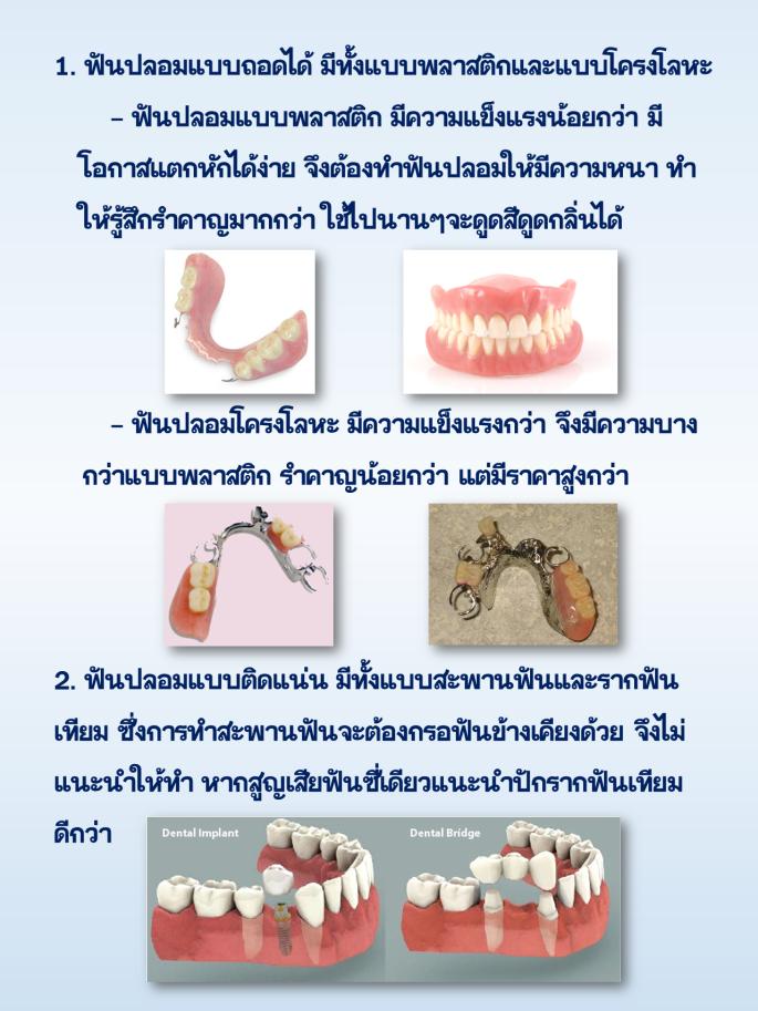 ฟันปลอม1