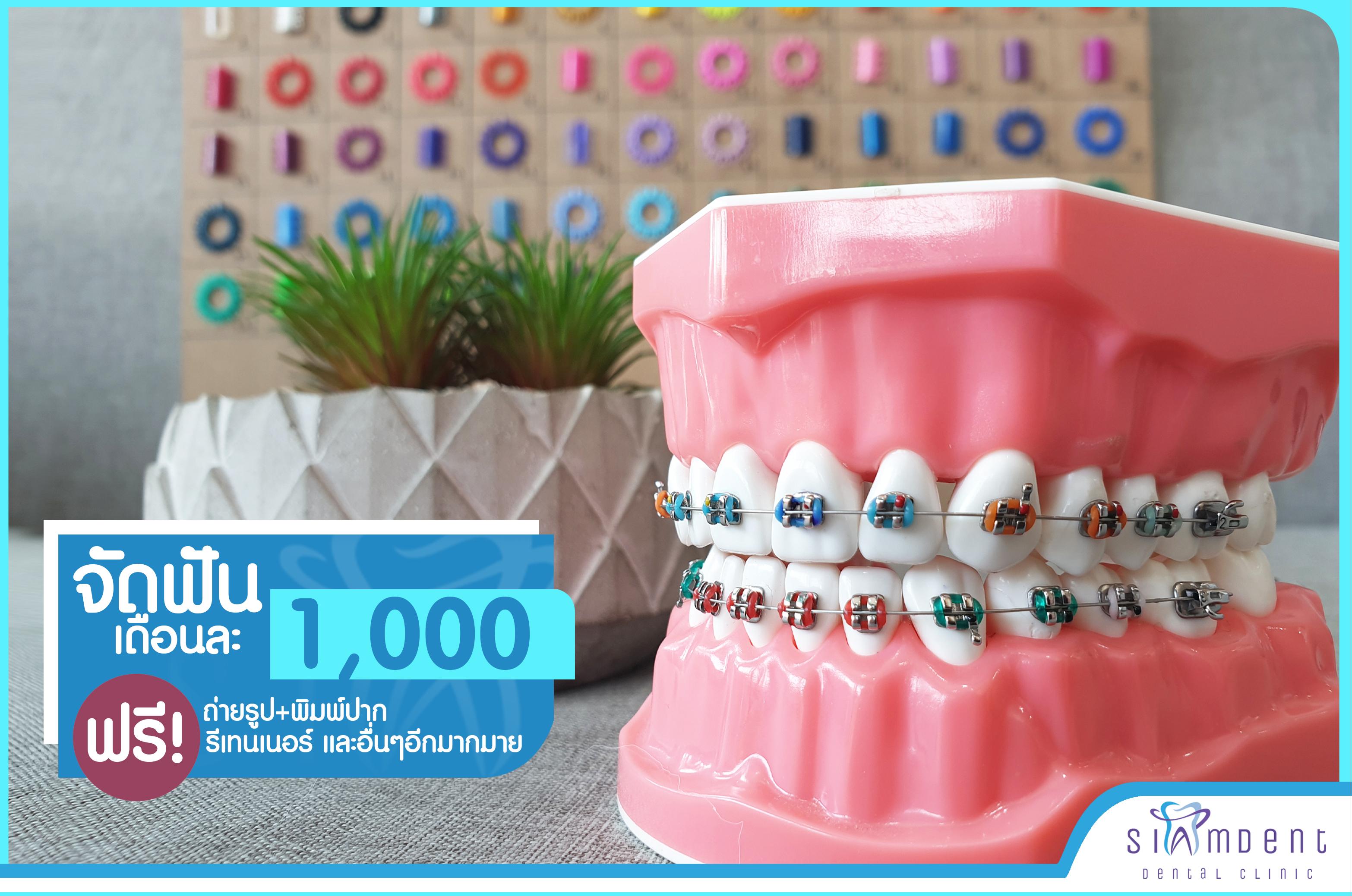 โปรโมชั่นจัดฟันผ่อนเดือนละ 1000
