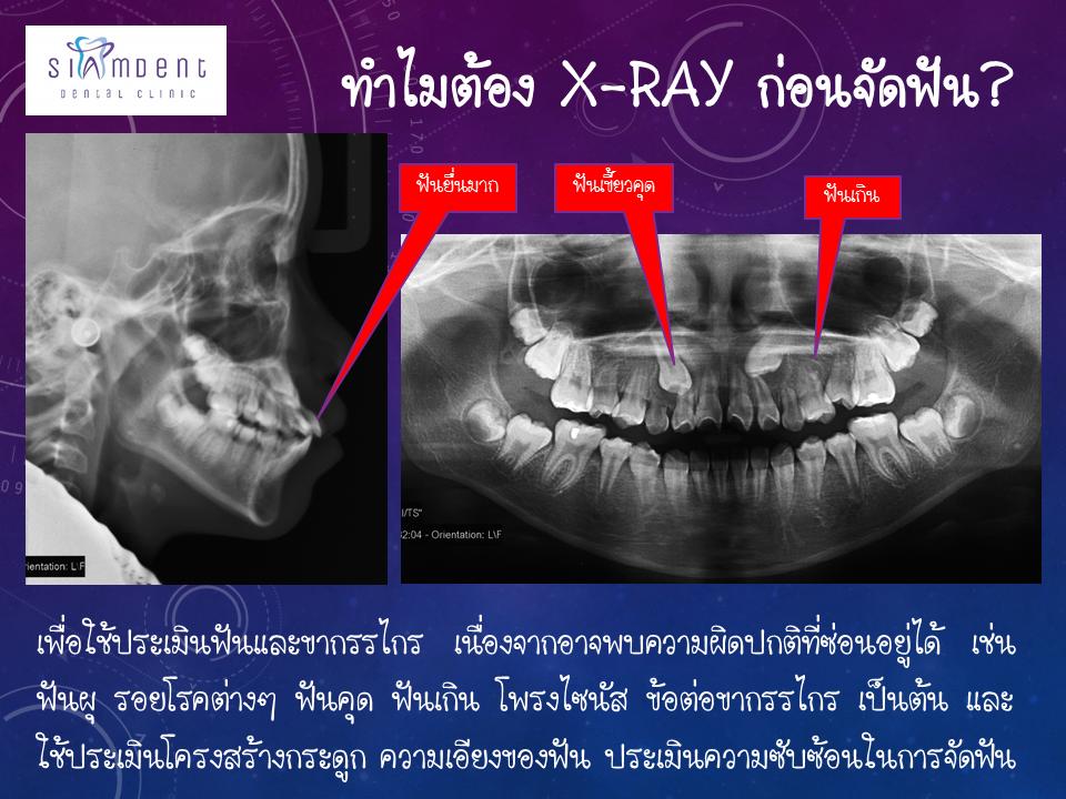 ทำไมต้อง x-ray ก่อนจัดฟัน