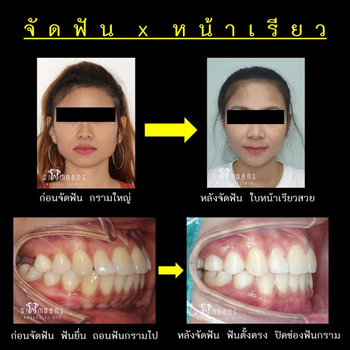จัดฟันหน้าเรียว แก้ฟันยื่น ปิดช่องฟันกราม