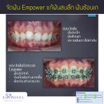 จัดฟัน Empower แก้ฟันสบลึก ฟันซ้อน