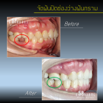 จัดฟันปิดช่องว่างฟันกราม