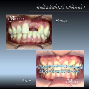 จัดฟันปิดช่องว่างฟันหน้า