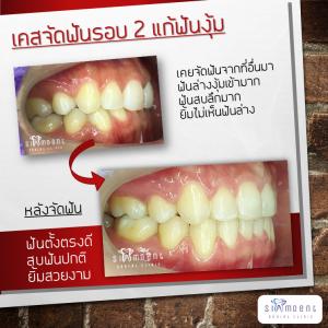จัดฟันรอบ 2 แก้ฟันงุ้ม