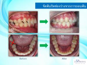จัดฟันปิดช่องว่างจากการถอนฟัน