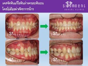 จัดฟันแก้ฟันสบคร่อมแบบไม่ผ่าตัด